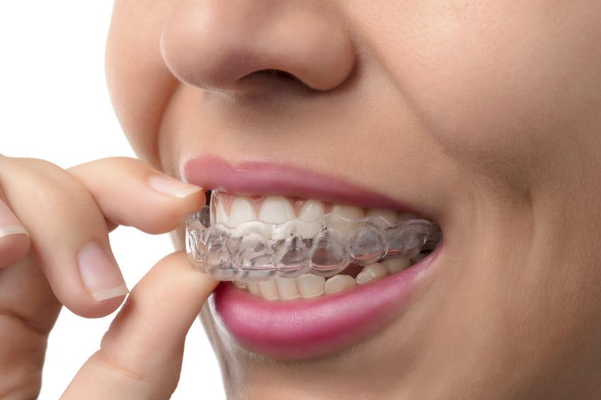 ortodoncia invisible en León