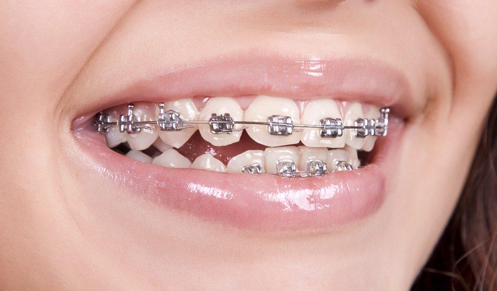 ortodoncia convencional León