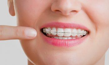 ortodoncia estética León