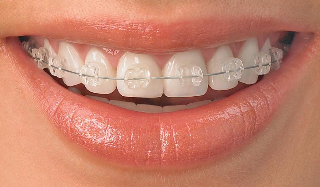 ortodoncia estética zafiro León