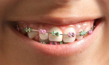 ortodoncia infantil León