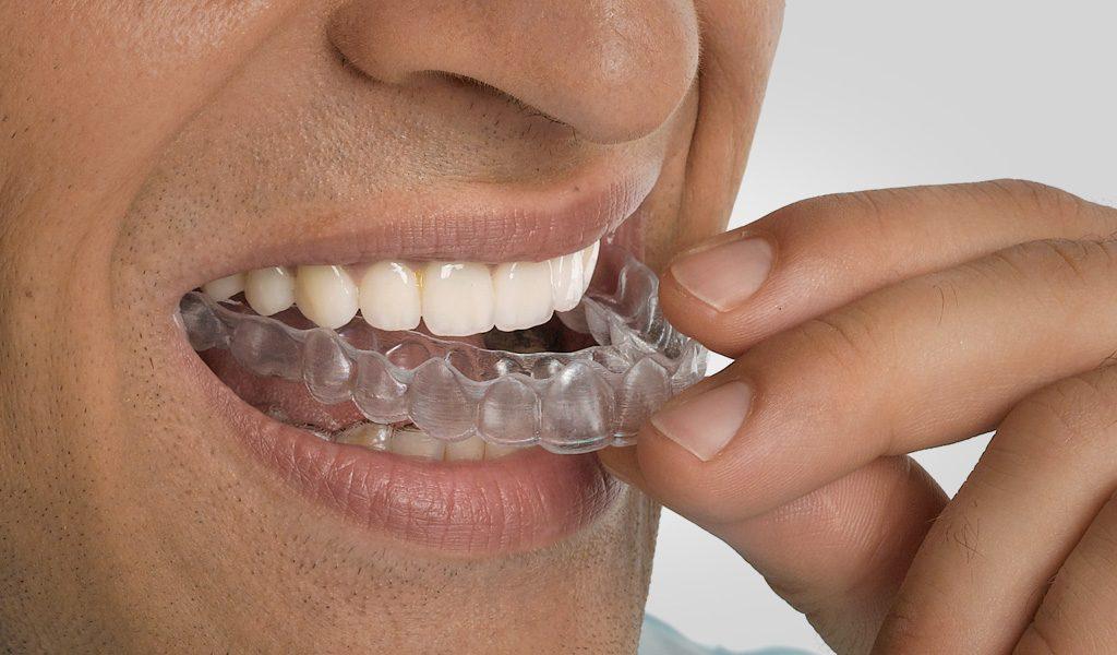 ortodoncia invisalign León