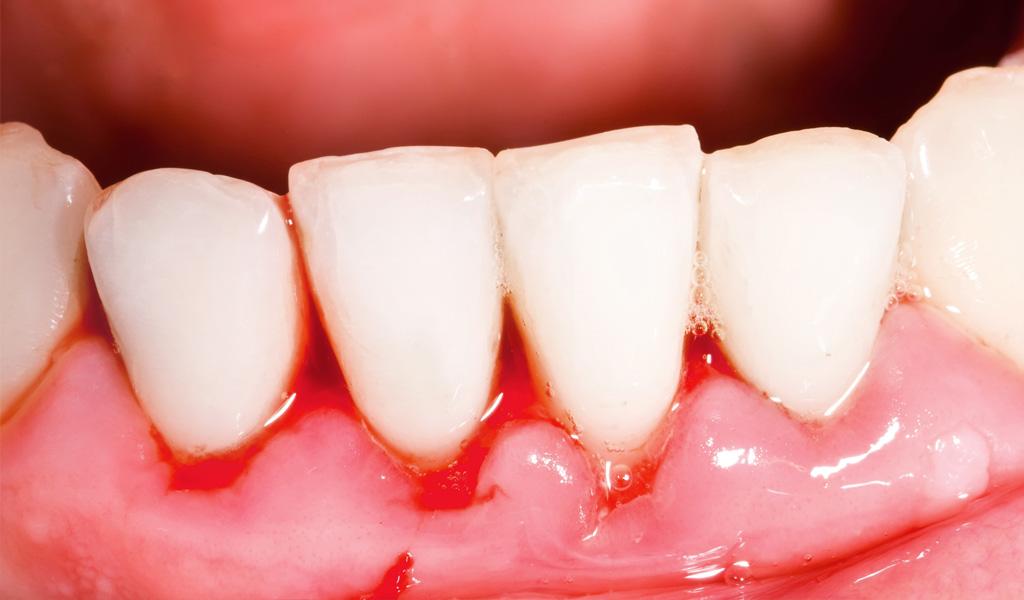 urgencias dentales en León